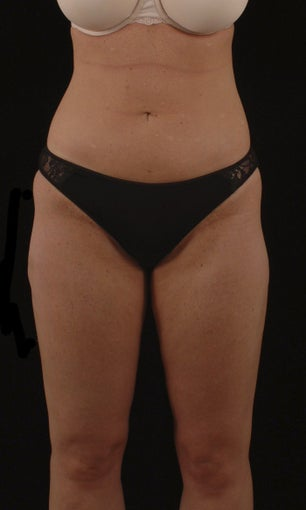 Liposuction after 513562