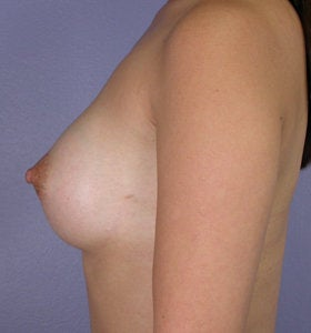 Breast Augmentation after 281444