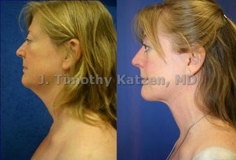 Neck liposuction before 667233