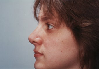 Revision Rhinoplasty after 358579