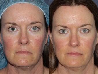 Before Amp After Ipl Photo From Sabrina Fabi Md San Diego