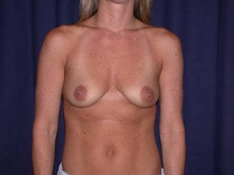 Bilateral Breast Augmentation with Extended Creasant Mastopexy's before 776173