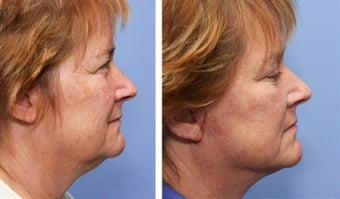 50 year old female one month after mini facelift 693173