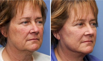 50 year old female one month after mini facelift after 693173