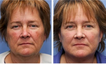 50 year old female one month after mini facelift before 693173