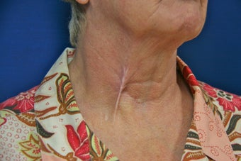 Tethered Neck Scar Revision before 706219
