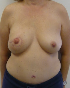 DIEP Flap Breast Reconstruction after 295196