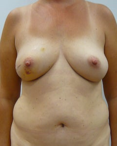 DIEP Flap Breast Reconstruction before 295196