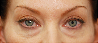 Eye Bag Surgery before 887157
