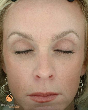 Female Patient Treated with BOTOX® Cosmetic after 1047038
