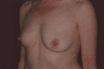 47 Year Old Female with Breast Reconstruction After Cancer 1180780