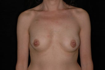 47 Year Old Female with Breast Reconstruction After Cancer after 1180780