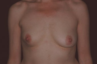47 Year Old Female with Breast Reconstruction After Cancer before 1180780