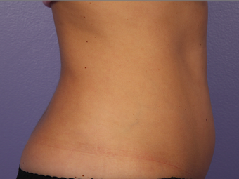 Zeltiq CoolSculpting- Lower Abdomen before 328276