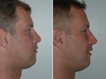 Revision Rhinoplasty after 228968