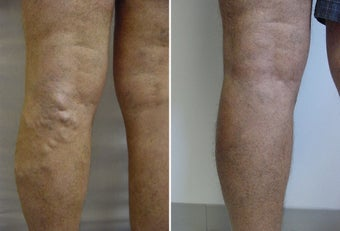 Varicose vein endovenous laser treatment before 109817