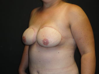 Flap-based breast reconstruction - DIEP 867409