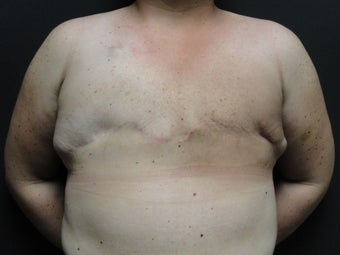 Flap-based breast reconstruction - DIEP before 867409