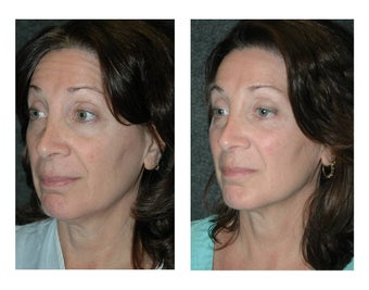 Lower Eyelid Lift (Extended) with Fat Transposition for Eye Bags before 896414