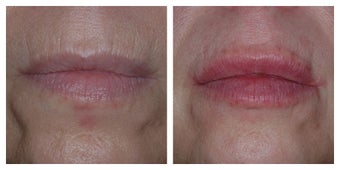 45 Year Old Female Treated for Lip Lines and Decreased Lip Volume before 1367261