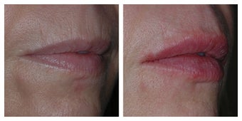 45 Year Old Female Treated for Lip Lines and Decreased Lip Volume after 1367261