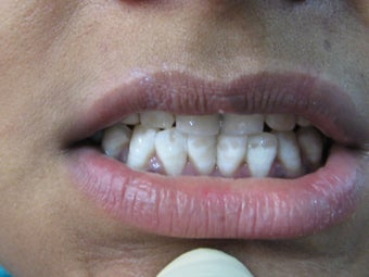 Laser Speed Tooth Whitening after 773989