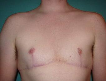 FTM chest masculinization in Chicagoland after 867227