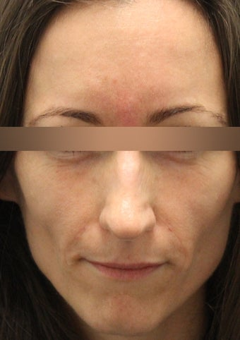 Restylane and Dysport to the Glabella after 1184723