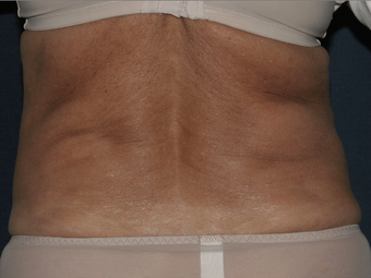 Liposculpture before 596227