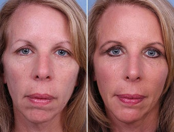 Radiesse, Cheek and Chin Augmentation before 242548