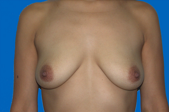 breast augmentation  with full mastopexy before 391304