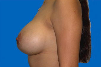 breast augmentation  with full mastopexy 391304