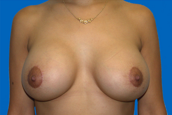 breast augmentation  with full mastopexy after 391304