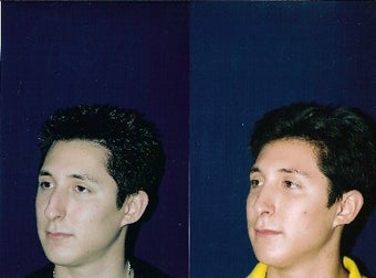 Rhinoplasty and Septoplasty before 234096