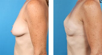 48 Year Old Woman, Cassileth One-Stage Breast Reconstruction after 1039926