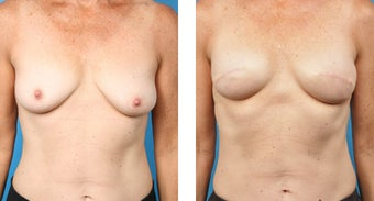 48 Year Old Woman, Cassileth One-Stage Breast Reconstruction before 1039926