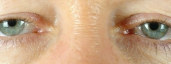 Eyelid Surgery before 502774