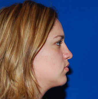 Chin Augmentation after 1284444