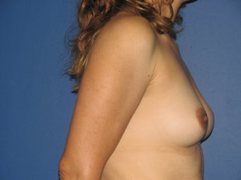 Breast Augmentation 578462
