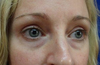 Lower eyelid hyaluronic acid (Restylane) before 908788