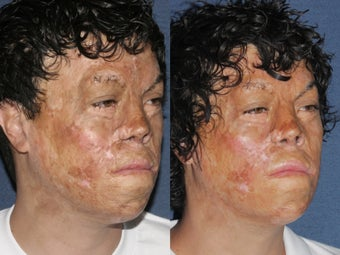 Before & After Laser Resurfacing after 806234