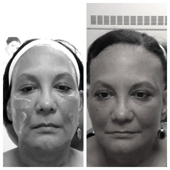 Sculptra before and immediately after (stay tuned for follow up because this LASTS)