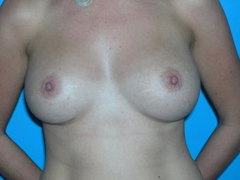 Breast augmentation for older women