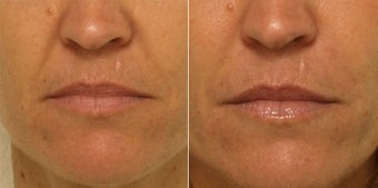 Smile lines treated with Restylane before 653399