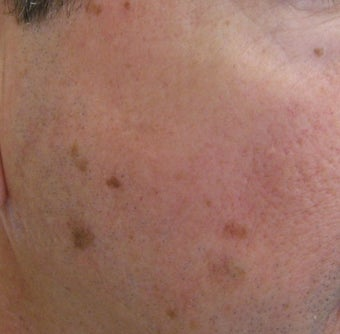 58 year old Male with undesired Pigmentation on face before 694161