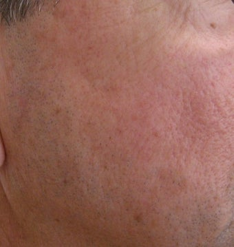 58 year old Male with undesired Pigmentation on face after 694161