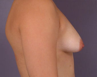 Breast Asymmetry Correction before 281321