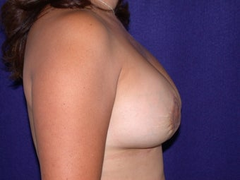 Breast Augmentation after 205564