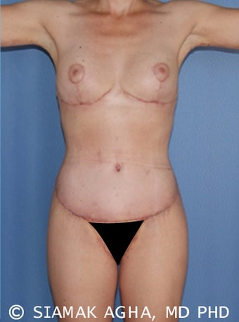 33 Year Old Female Body Lift after 660094