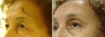 Coronal brow lift  before 155079